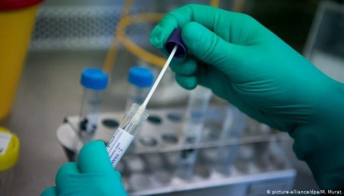Ученые заявили о новом способе заражения коронавирусом