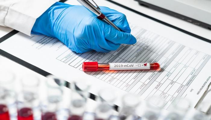 Azərbaycanda daha 338 nəfər koronavirusa yoluxub, 4 nəfər ölüb