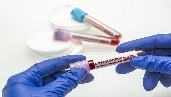"""""""Jurnalistlər binası""""nda koronavirus aşkarlandı: Jurnalist və ailəsi karantinə alındı"""