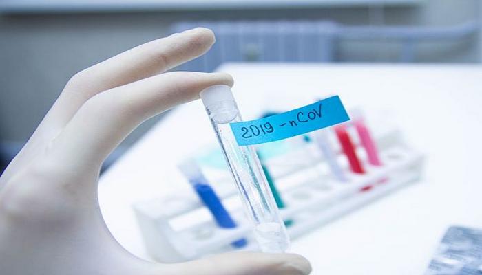 Azərbaycanda daha 36 nəfər koronavirusdan öldü: 2 414 yeni yoluxma