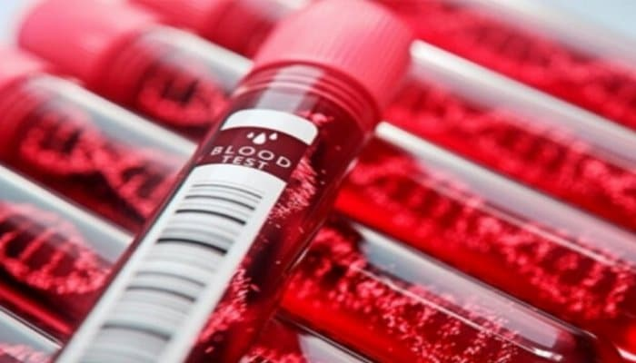Вы очень рискуете: специалисты назвали самую опасную группу крови