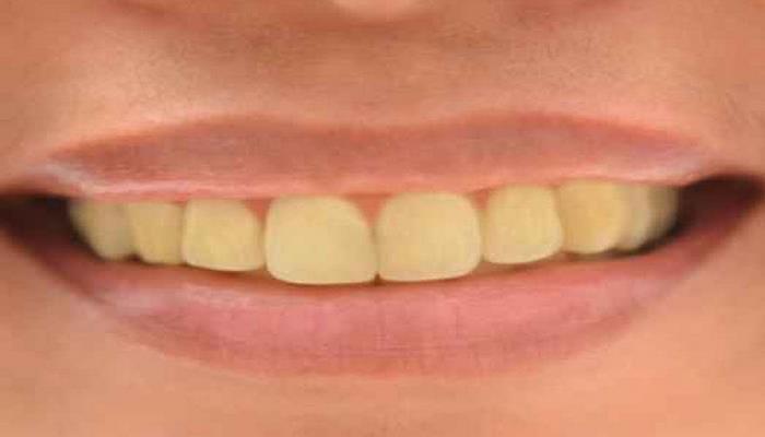 Dişlərin saralmasının 5 səbəbi