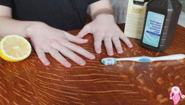Tırnak Beyazlatma Yöntemleri Limon ve Diş Macunu