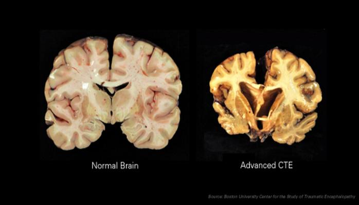 Ученые поняли, почему боксеры страдают ранней деменцией.